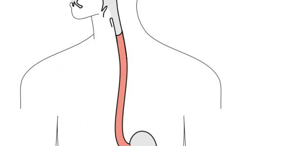 Γαστροοισοφαγική Παλινδρόμηση (ΓΟΠ), αίτια, συμπτώματα, θεραπεία